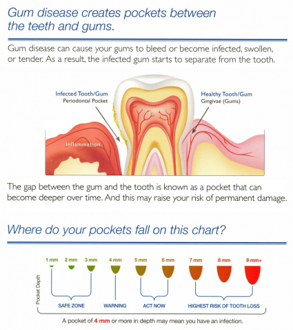 Blog silver state dental when you see me as a new patient for an initial examination or when you visit our hygienists to get your teeth cleaned you will have the health of your gums ccuart Choice Image